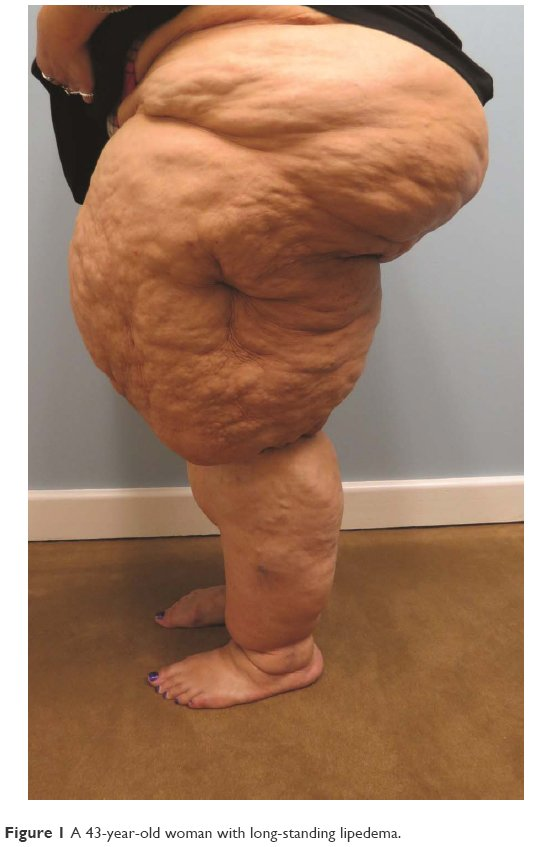 Full text] Lipedema: diagnostic and management challenges | IJWH