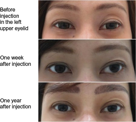 Full text] Hyaluronic acid fillers with cohesive