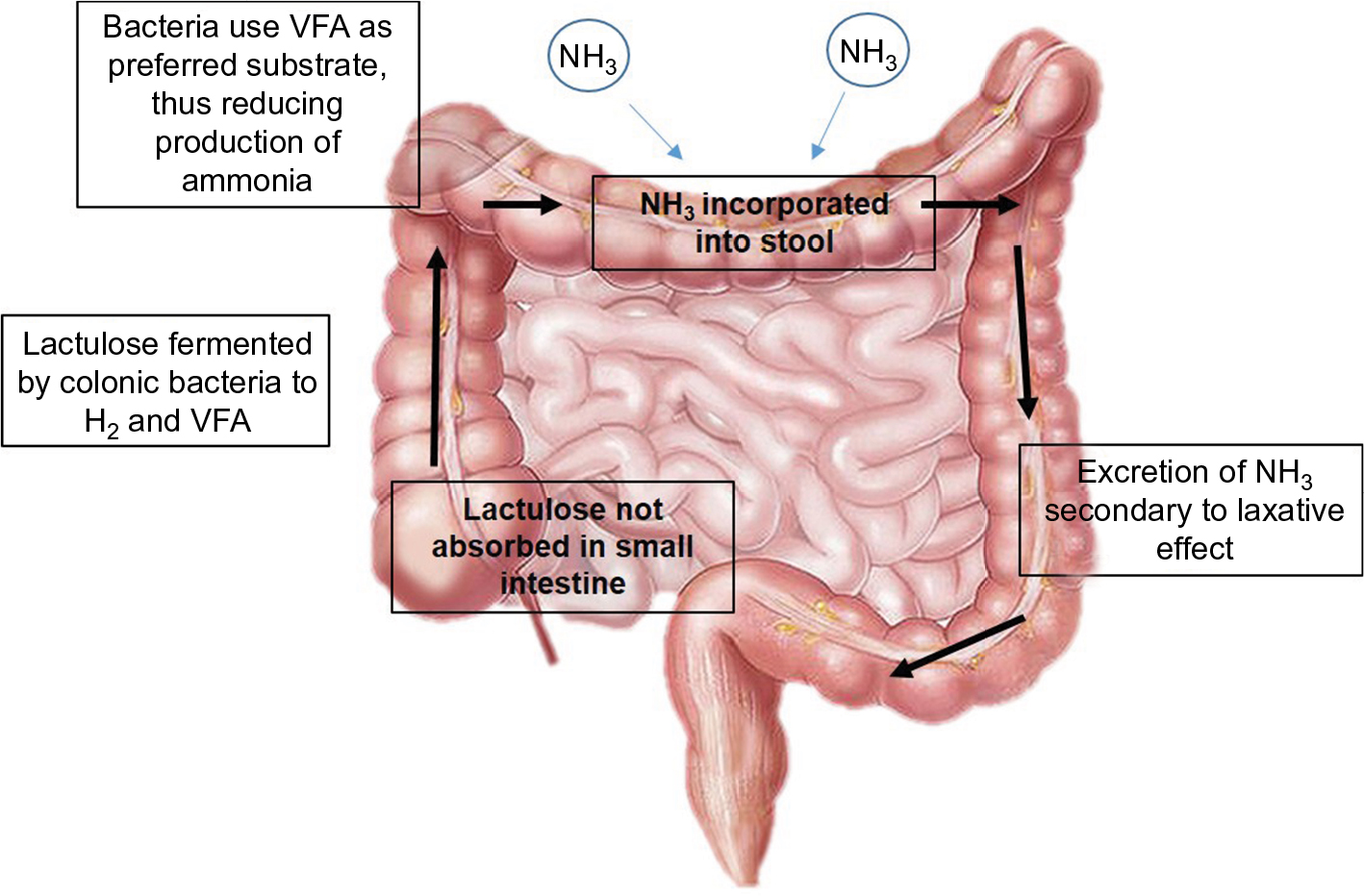 Full text] Hepatic encephalopathy: current challenges and future
