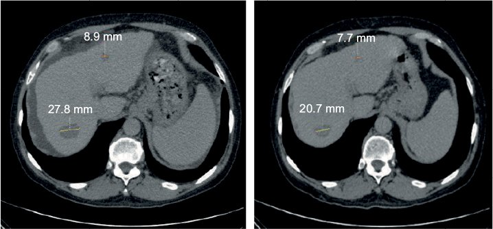 Figure 7 Patient #63 started treatment in January 2015 (left panel); 3 weeks later, in February 2015 (right panel), both initially presented lesions shrank from 27.8 and 8.9 mm to 20.7 and 7.7 mm, respectively. Ascites clearly visible as dark gray band surrounding the liver at treatment initiation resolved after less than 1 month. After 5 months, AFP levels dropped from 5,034 to 48 IU/mL.