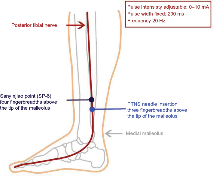 Full Text Effectiveness Of Percutaneous Tibial Nerve Stimulation In