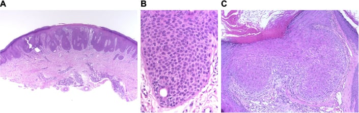 Full text] Simple approach to histological diagnosis of