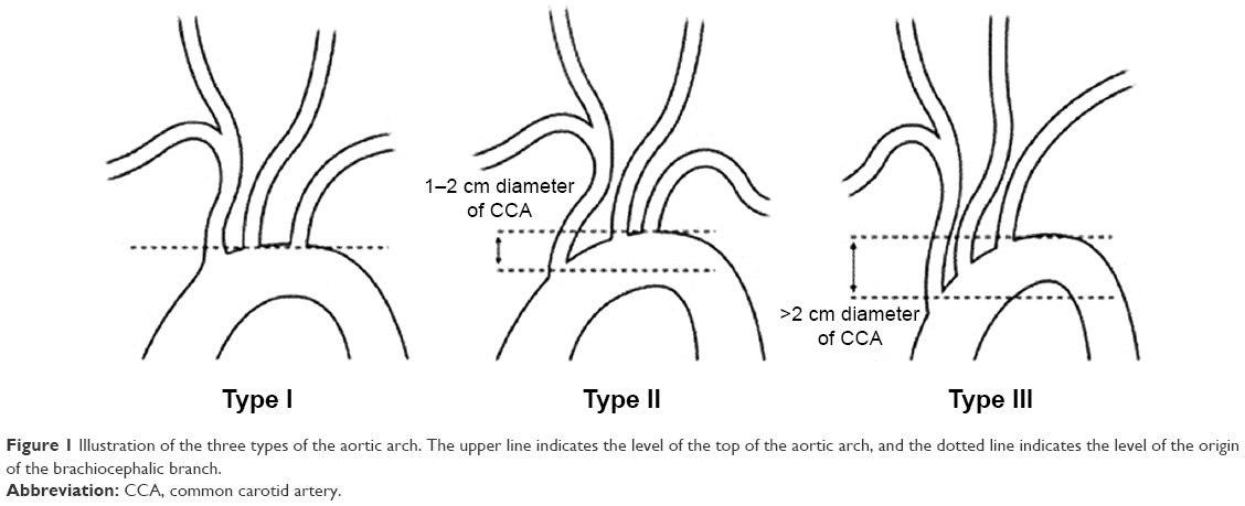 Full Text The Effect Of Demographic Features On Aortic Arch Anatomy
