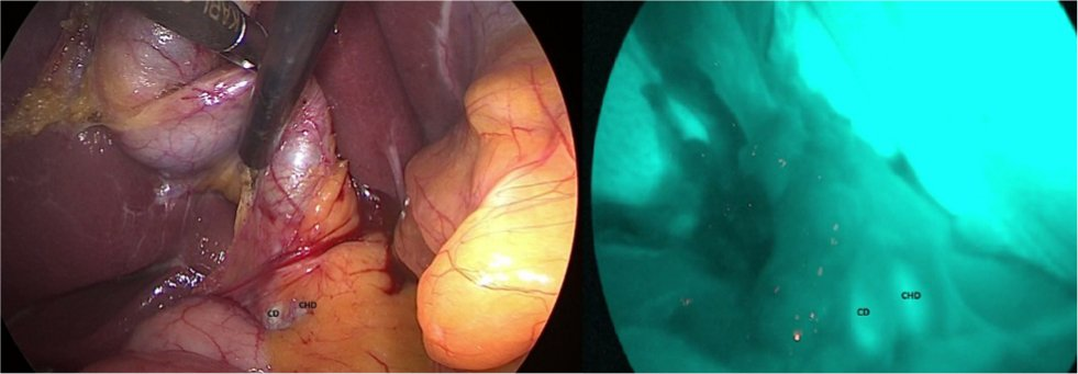 Full text] Iatrogenic bile duct injury: impact and management
