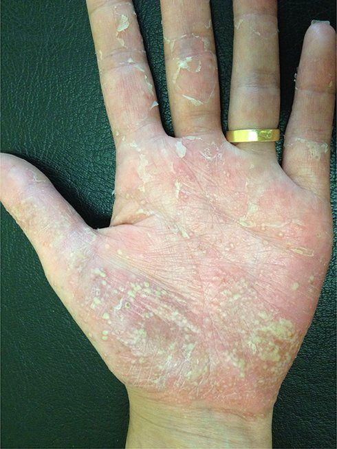 Causes ppp what Palmoplantar Pustulosis: