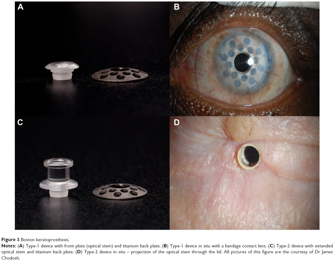 Full text] Keratoprostheses for corneal blindness: a review of