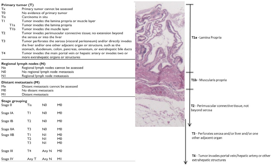 Full text] Gallbladder cancer: epidemiology and outcome | CLEP