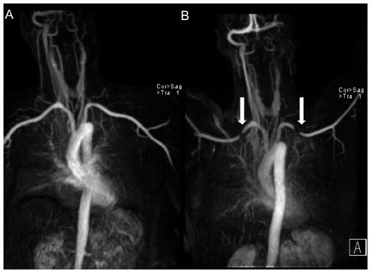 Full Text The Diagnosis Of Thoracic Outlet Syndrome Jvd