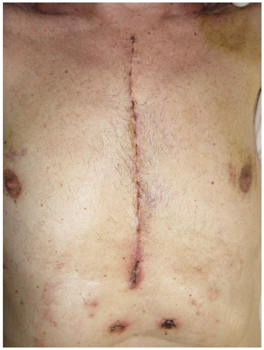 Full text] Skin, fascias, and scars: symptoms and systemic