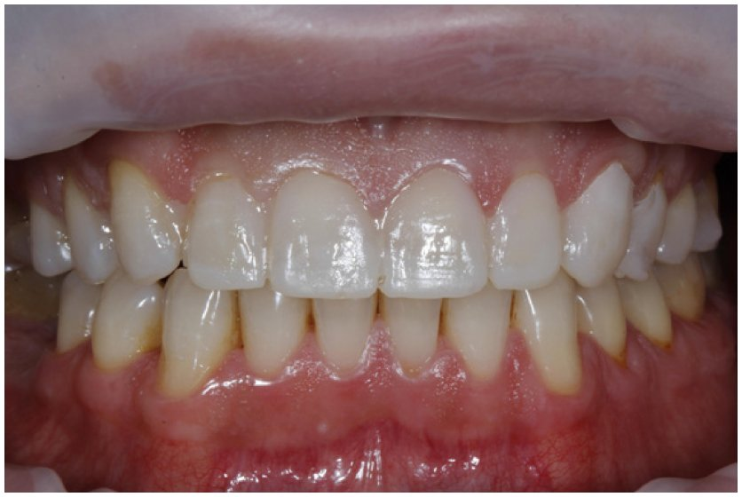 Full text] Minimally invasive veneers: current state of the