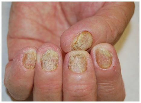 Nail involvement occurs in up to 50  of patients with psoriasis 1 2