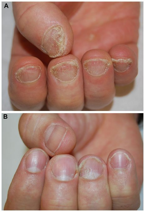 The purpose of this study is to investigate efficacy of excimer laser for treatment of fingernail psoriasis 2