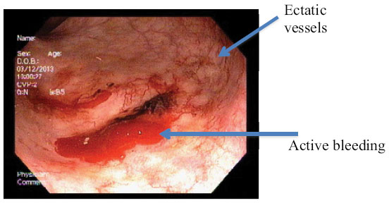 Full Text Radiofrequency Ablation Using Barrx For The
