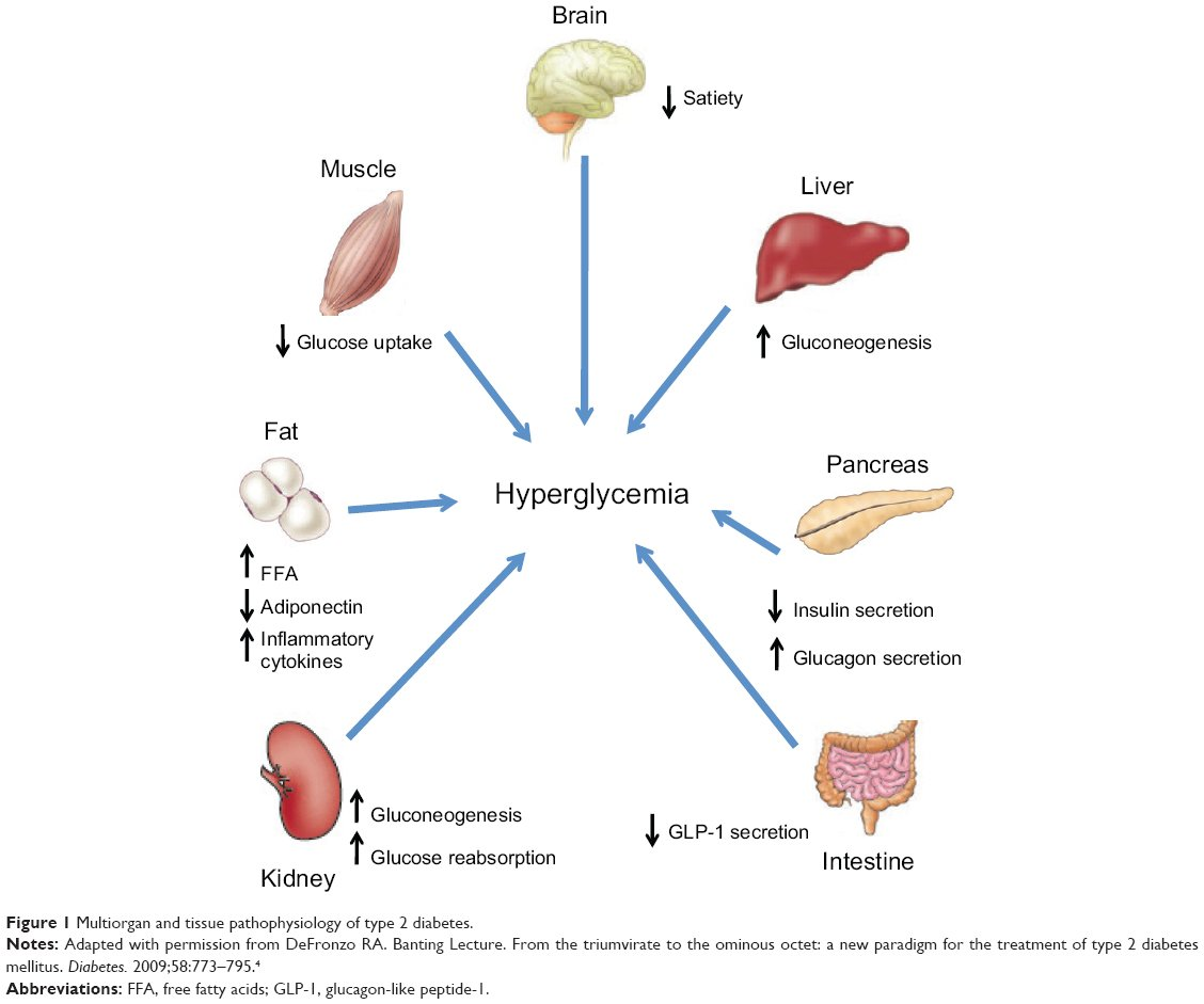 Diabetes Mellitus Type 1 Pathophysiology | www.pixshark