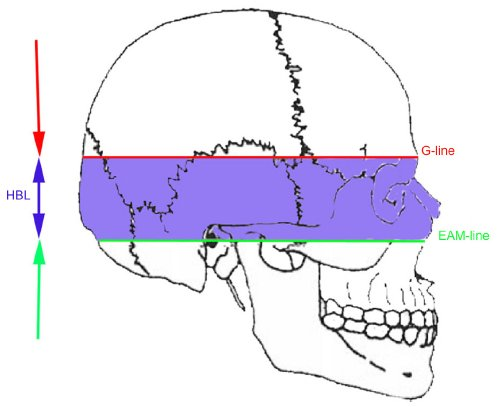 Full Text Forensic Investigation Of Cranial Injuries Due To Blunt Force Trauma Rrfms