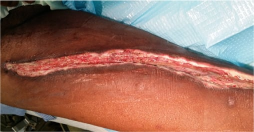 Full text] Saphenous vein harvest wound complications: risk