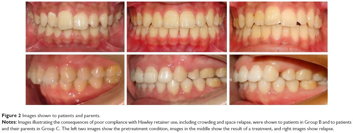 Types Of Hawley Retainers