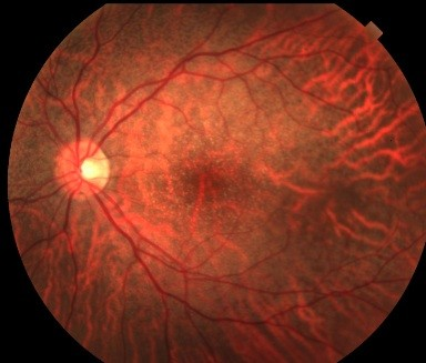 Progressive Symmetric Vertical Macular Wide Angioid Streak Like Lacquer Crack