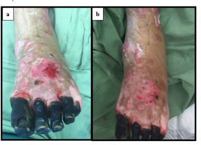 Full Text Treatment Of Hypergranulation Tissue In Burn Wounds With