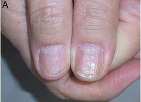 Full text] Nail psoriasis: clinical features, pathogenesis ...