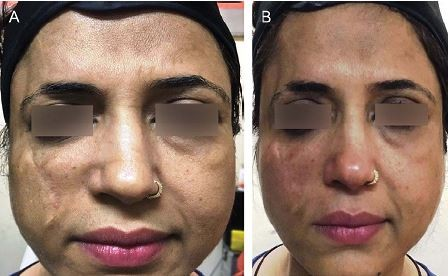 Full text] Treatment of a traumatic atrophic depressed scar