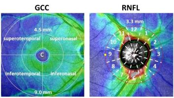 3708dbd3e5d7 Ocular parameters before and after steep Trendelenburg positioning for  robotic-assisted laparoscopic radical prostatectomy