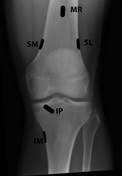 Radiofrequency techniques to treat chronic knee pain a radiofrequency techniques to treat chronic knee pain a comprehensive review of anatomy effectiveness treatment parameters and patient selection ccuart Choice Image