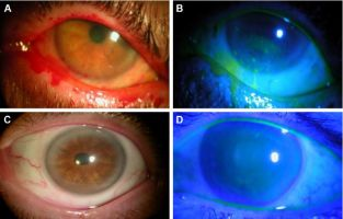 46bd7c6b2bd Treatment outcomes in the DRy Eye Amniotic Membrane (DREAM) study