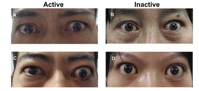 Full Text Thyroid Eye Disease How A Novel Therapy May Change The Treatment Para Tcrm
