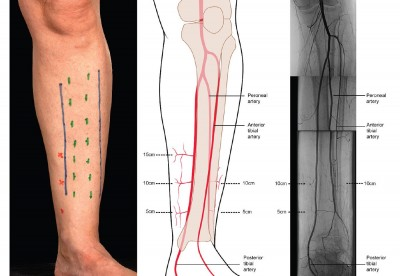 how to know if you have compartment syndrome