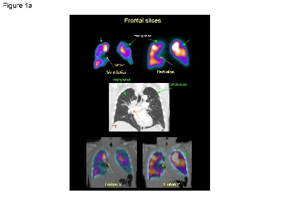 psoriasis and chronic obstructive pulmonary disease a case-control study