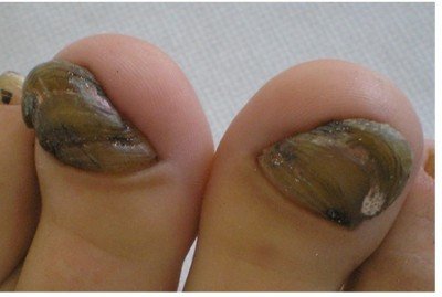 Chloronychia Green Nail Syndrome Caused By Pseudomonas Aeruginosa In Elderly Persons