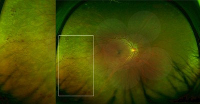 Optomap Ultrawide Field Imaging Identifies Additional Retinal Abnormalities In Patients With Diabetic Retinopathy