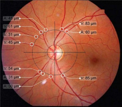 [Full text] Changes in retinal microvascular diameter in ... | 400 x 352 jpeg 37kB