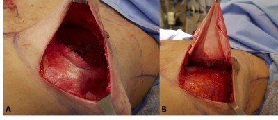 reconstruction Infection after breast