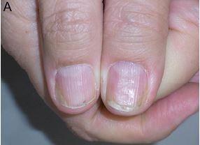 nail psoriasis signs and symptoms