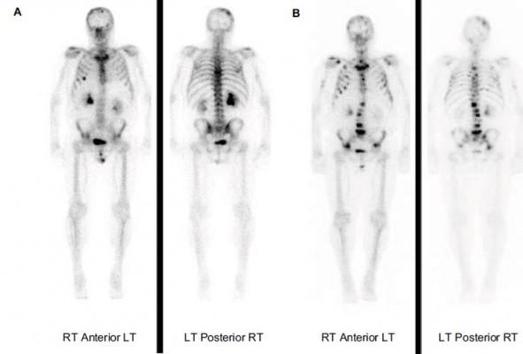 prostate cancer bone metastasis survivor blogs