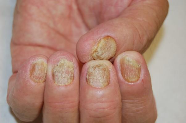 Giardia recurrence symptoms