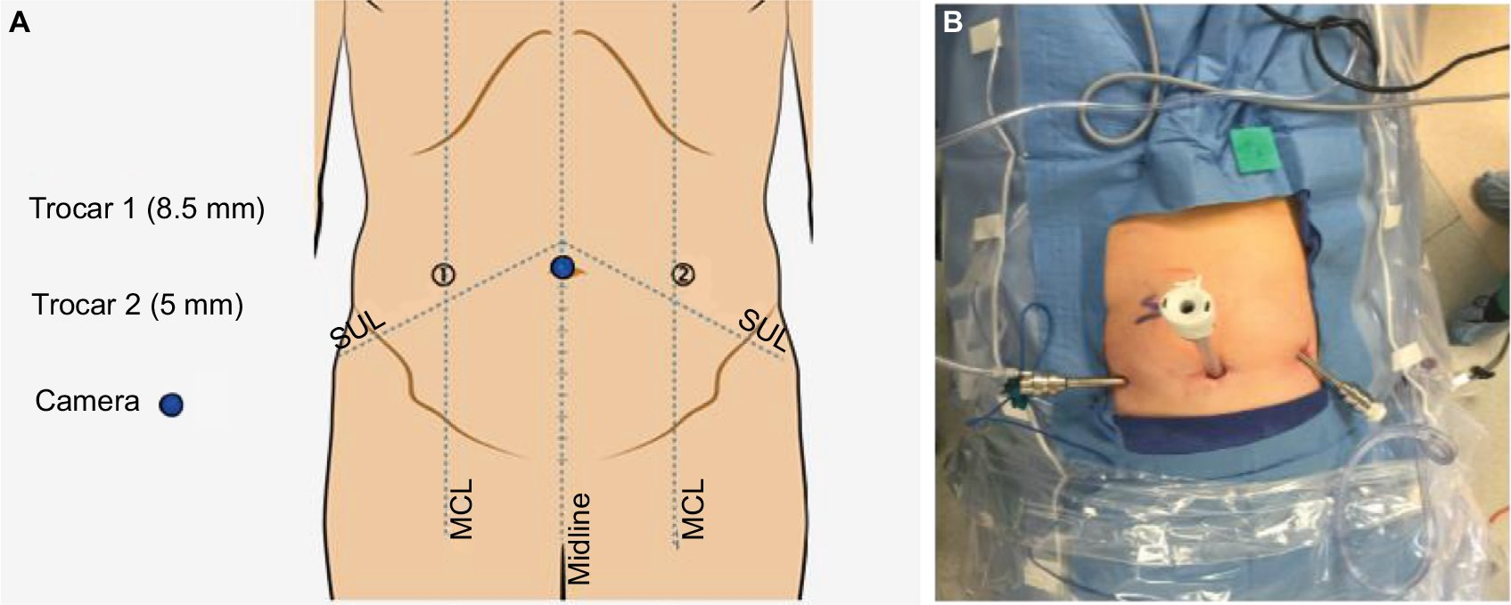 Full text] Current perspectives in robotic hernia repair | RSRR
