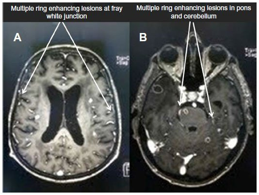 Full text A case of anxiety associated with miliary ...